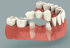http://drgeorgespoulakos.com/wp-content/uploads/2017/06/ponts-dentaires.jpg